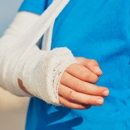 First-Aid for Fractures and Broken Bones